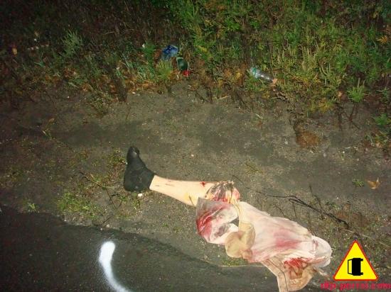 Фото человеческой ноги, оторванная в ДТП нога