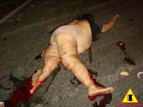 Фото оторванной ноги у женщины_thumb.jpg