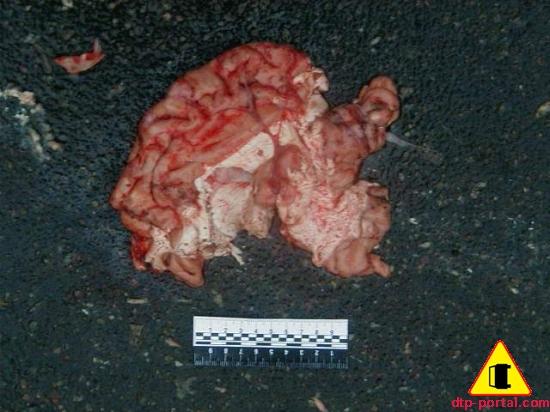 Фрагмент мозга человека на месте ДТП
