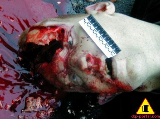 Страшное фото головы человека после переезда ее грузовиком.