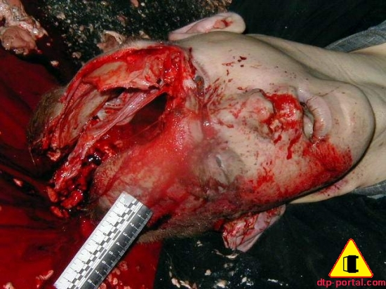 Дырка в голове человека, образовавшаяся после наезда на нее автомобилем