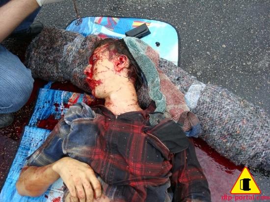 фото труп в крови_thumb.jpg